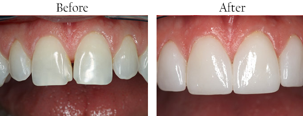 Crownsville Dentist Images
